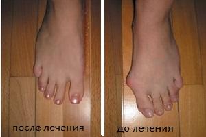val'gusnaya-deformaciya